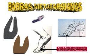 Las barras metatarsianas te ayudarán a evitar el dolor en los metatarsos